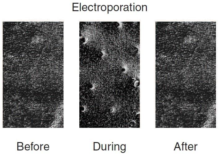 electromesotherapie et electroporation
